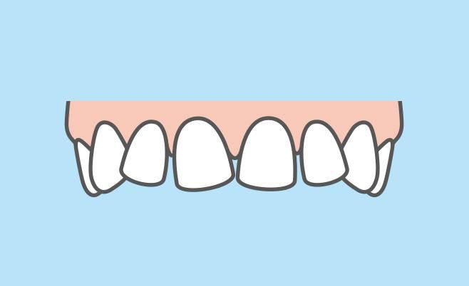 「後戻り」した歯の再矯正